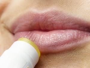 lip balm chapstick