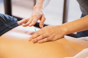 man receiving acupuncture to solve migraines